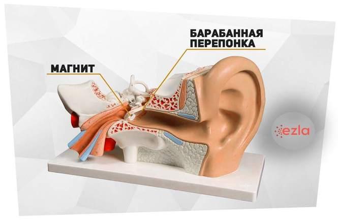Магнит в ухе